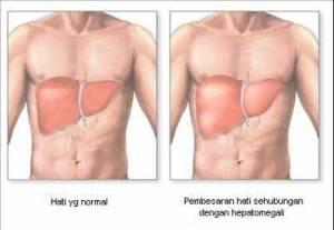 hepatomegali